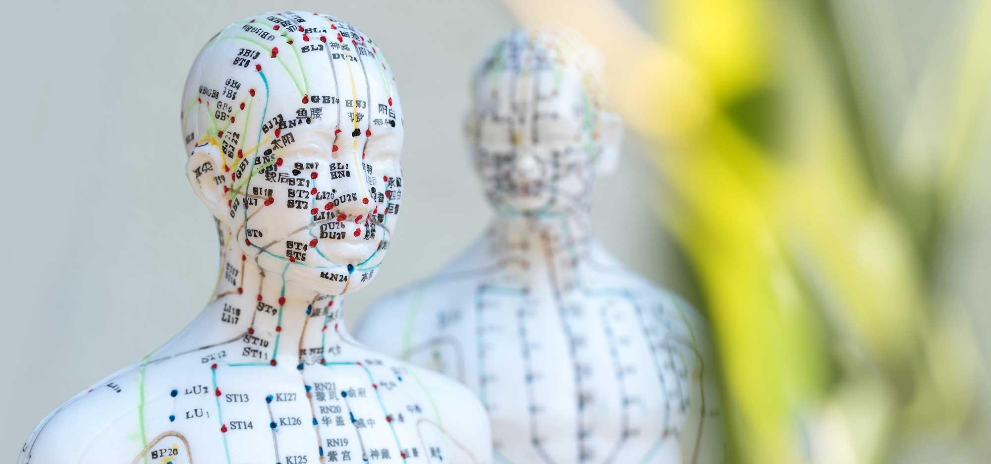 Ganzheitliche Behandlung mit Akupunktur